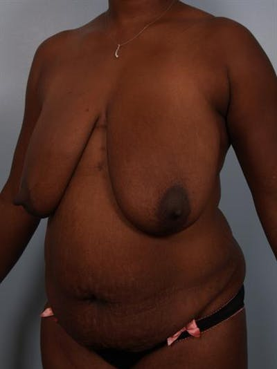 Tummy Tuck Gallery - Patient 1310909 - Image 1