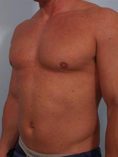 Male Breast/Areola Reduction Gallery - Patient 1310907 - Image 8