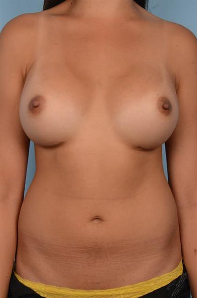 Power Assisted Liposuction Gallery - Patient 1310908 - Image 4