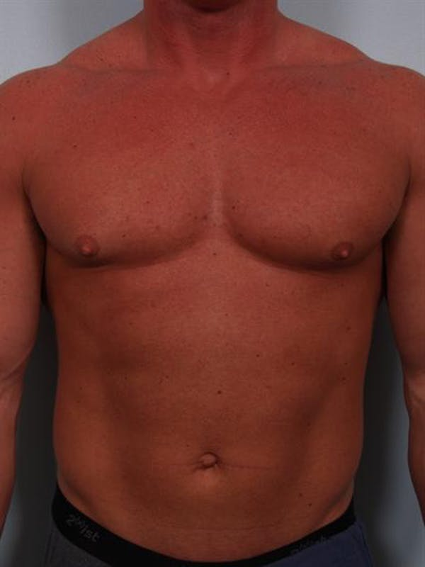 Male Breast/Areola Reduction Gallery - Patient 1310907 - Image 9