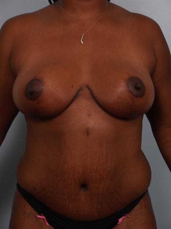 Tummy Tuck Gallery - Patient 1310909 - Image 4