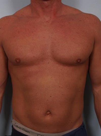 Male Breast/Areola Reduction Gallery - Patient 1310907 - Image 10