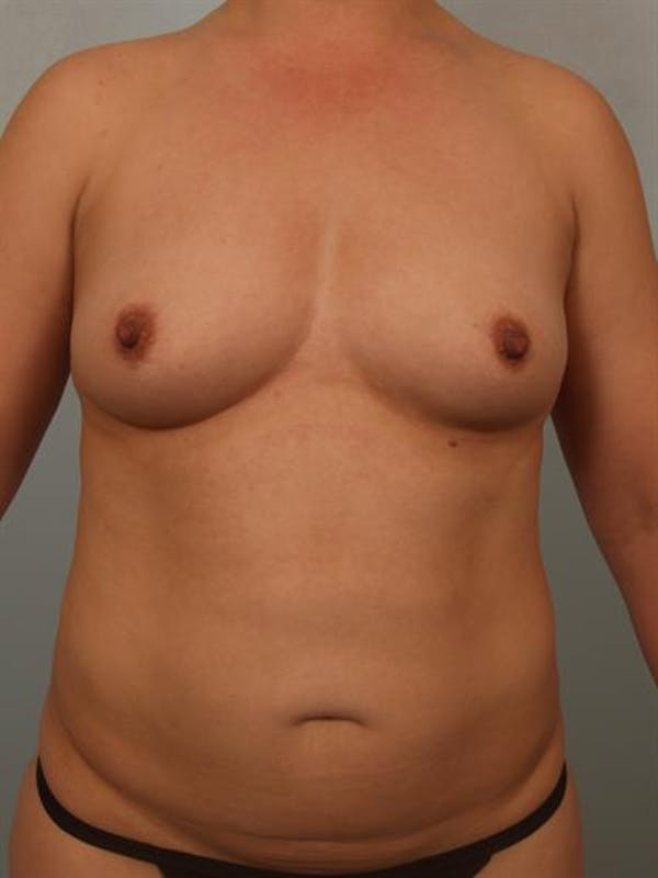 Breast Augmentation Gallery - Patient 1310911 - Image 1