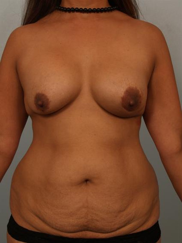 Mommy Makeover Gallery - Patient 1310913 - Image 1