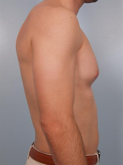 Male Breast/Areola Reduction Gallery - Patient 1310912 - Image 1