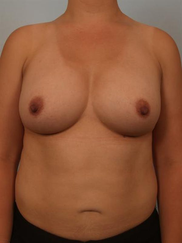 Breast Augmentation Gallery - Patient 1310911 - Image 2