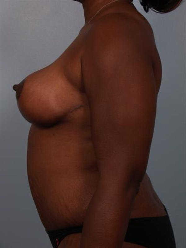 Tummy Tuck Gallery - Patient 1310909 - Image 6