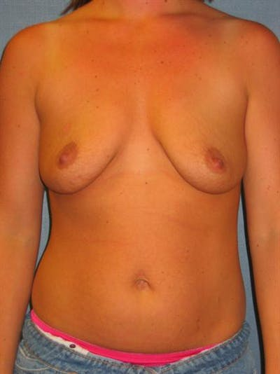 Breast Lift Gallery - Patient 1310914 - Image 1