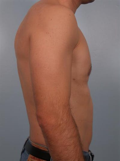 Male Breast/Areola Reduction Gallery - Patient 1310912 - Image 2
