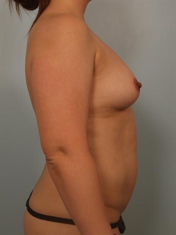 Breast Augmentation Gallery - Patient 1310911 - Image 3