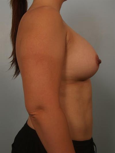 Breast Augmentation Gallery - Patient 1310911 - Image 4