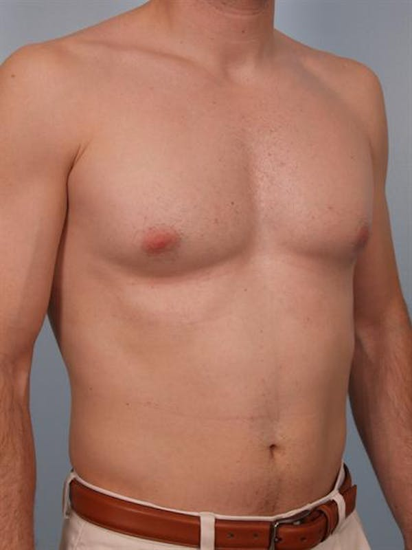 Male Breast/Areola Reduction Gallery - Patient 1310912 - Image 3