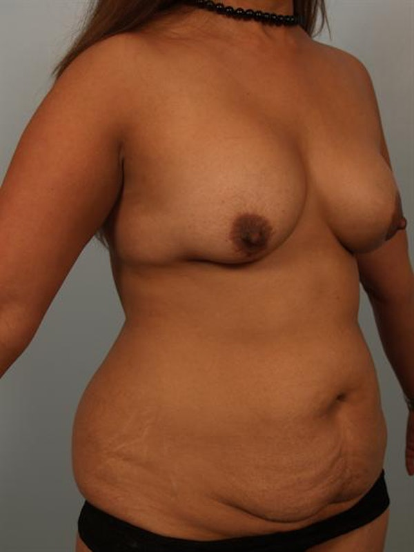 Mommy Makeover Gallery - Patient 1310913 - Image 5