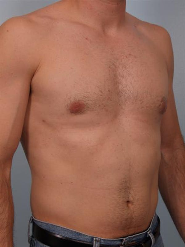 Male Breast/Areola Reduction Gallery - Patient 1310912 - Image 4
