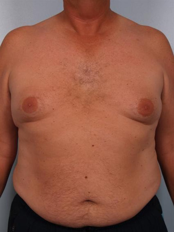 Power Assisted Liposuction Gallery - Patient 1310915 - Image 3