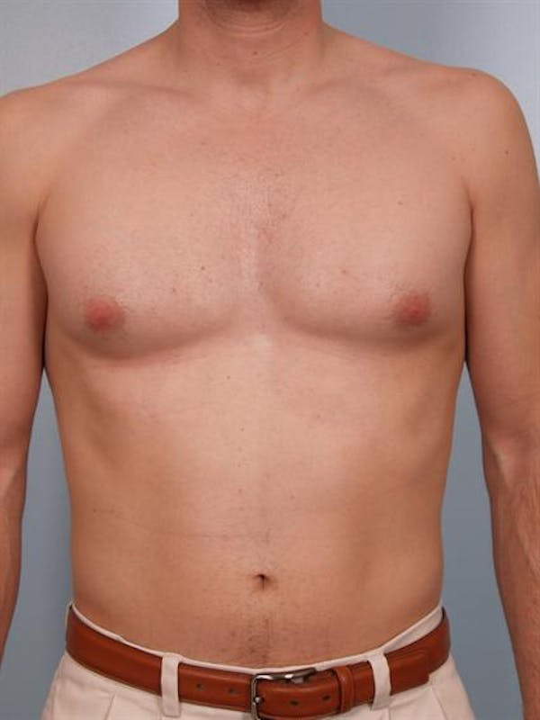 Male Breast/Areola Reduction Gallery - Patient 1310912 - Image 5