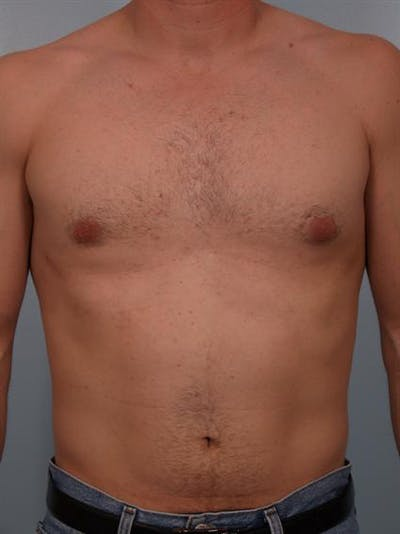 Male Breast/Areola Reduction Gallery - Patient 1310912 - Image 6