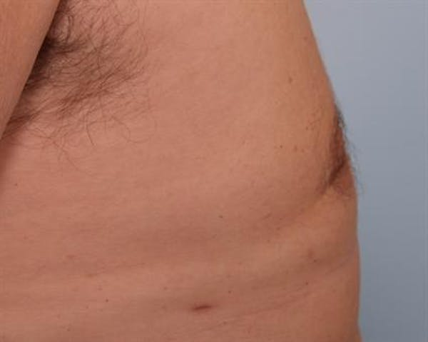 Power Assisted Liposuction Gallery - Patient 1310915 - Image 6