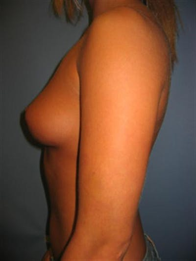 Breast Augmentation Gallery - Patient 1310922 - Image 1