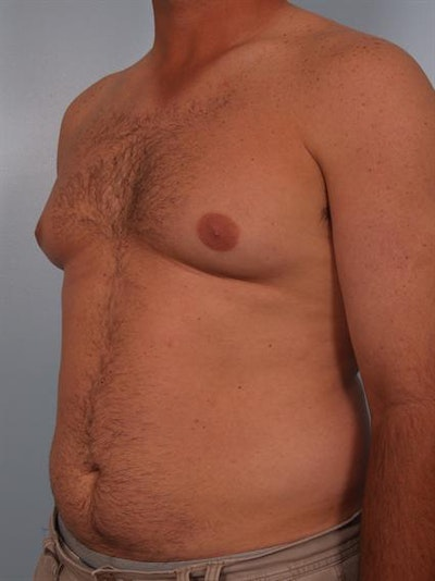 Male Breast/Areola Reduction Gallery - Patient 1310919 - Image 1