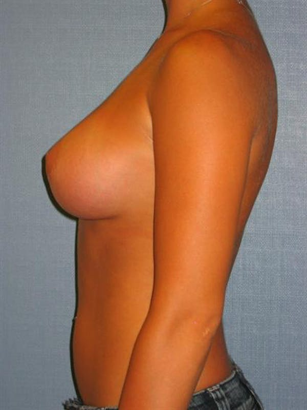 Breast Augmentation Gallery - Patient 1310922 - Image 2