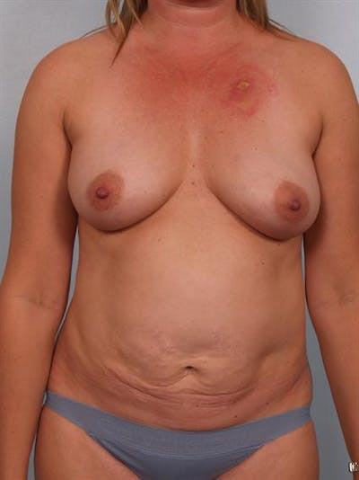 Mommy Makeover Gallery - Patient 1310921 - Image 1