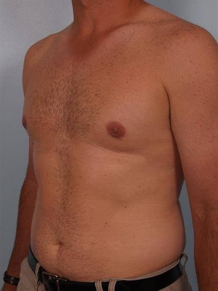 Male Breast/Areola Reduction Gallery - Patient 1310919 - Image 2