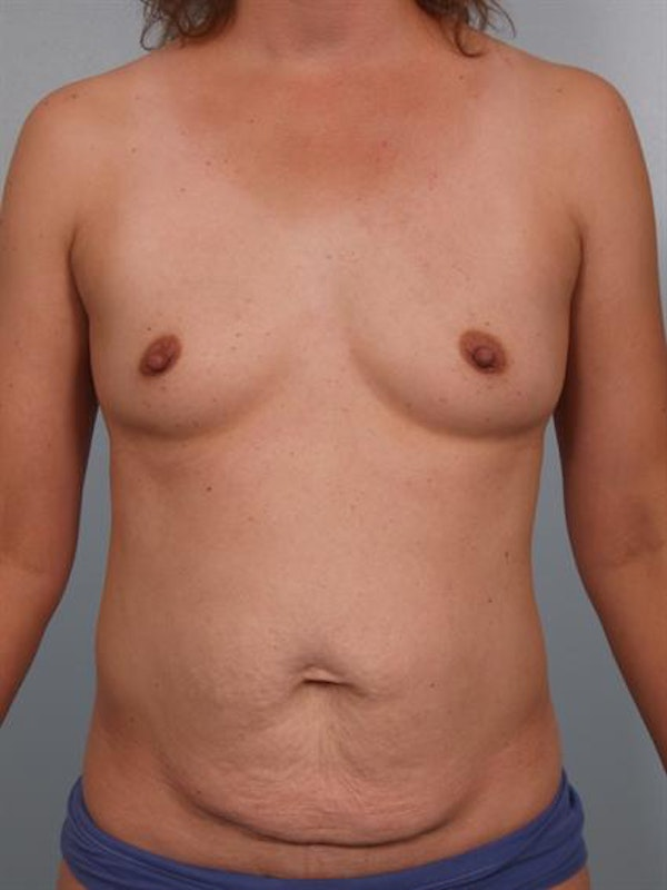 Tummy Tuck Gallery - Patient 1310920 - Image 1