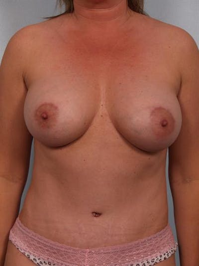 Mommy Makeover Gallery - Patient 1310921 - Image 2