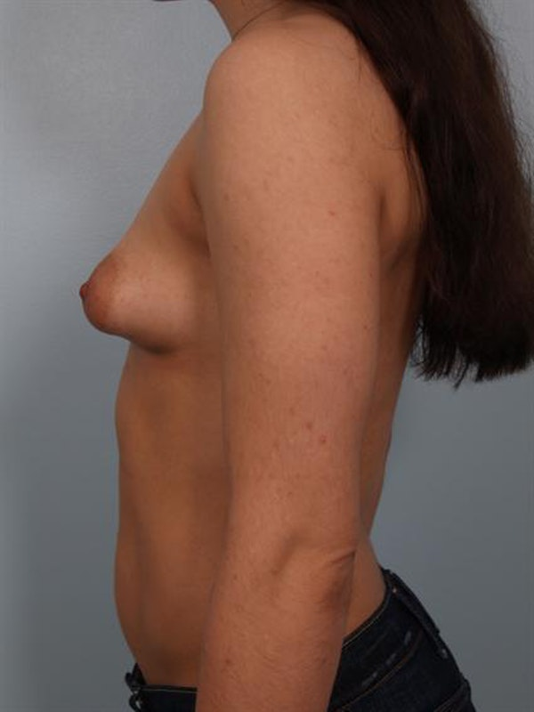 Breast Lift Gallery - Patient 1310924 - Image 3