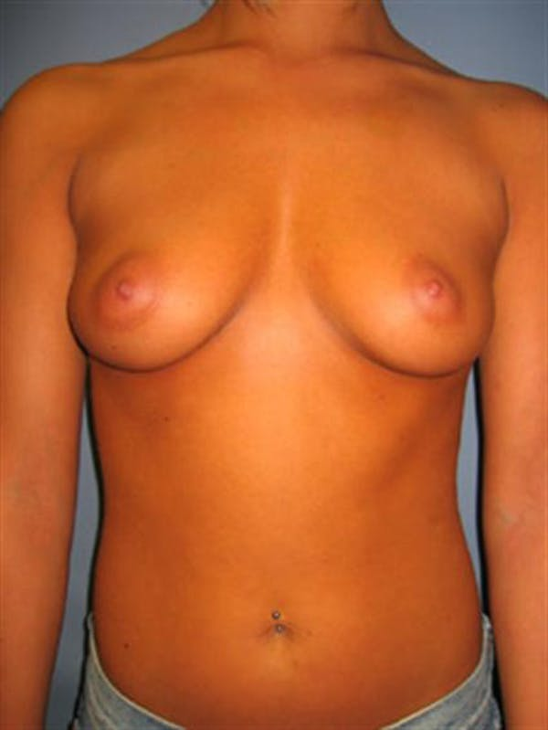 Breast Augmentation Gallery - Patient 1310922 - Image 3