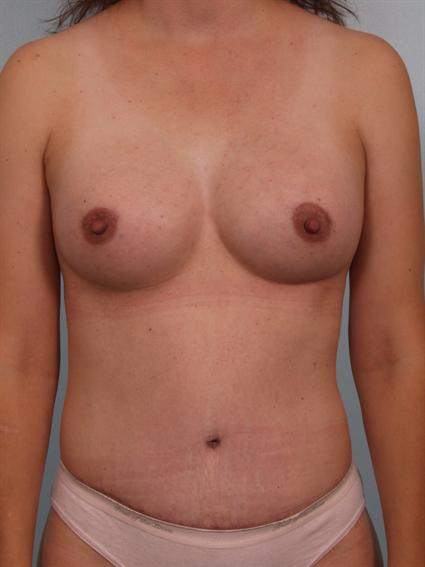 Image3 - Before and after image of Tummy Tuck by Dr. Cohen.