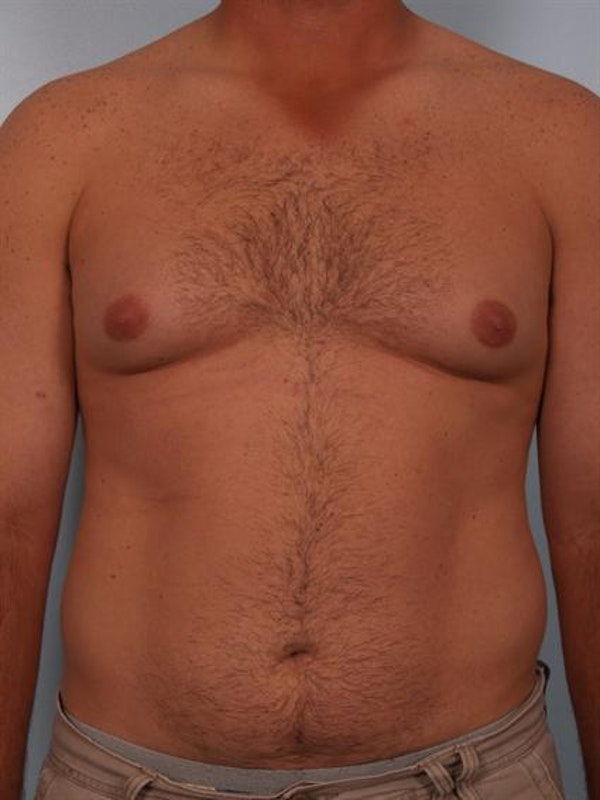 Male Breast/Areola Reduction Gallery - Patient 1310919 - Image 3