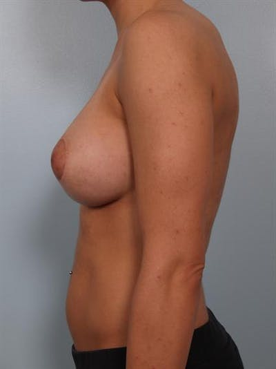 Breast Lift Gallery - Patient 1310924 - Image 4