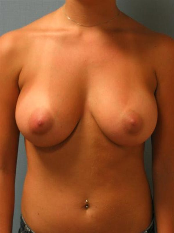 Breast Augmentation Gallery - Patient 1310922 - Image 4