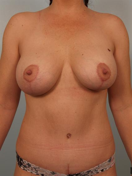 Image1 - Before and after image of Power Assisted Liposuction by Dr. Cohen.