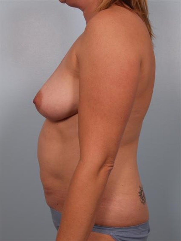 Mommy Makeover Gallery - Patient 1310921 - Image 3