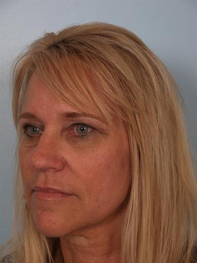 Juvederm Gallery - Patient 1310918 - Image 4