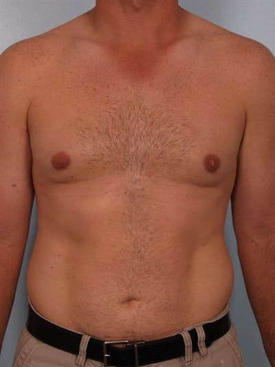 Male Breast/Areola Reduction Gallery - Patient 1310919 - Image 4