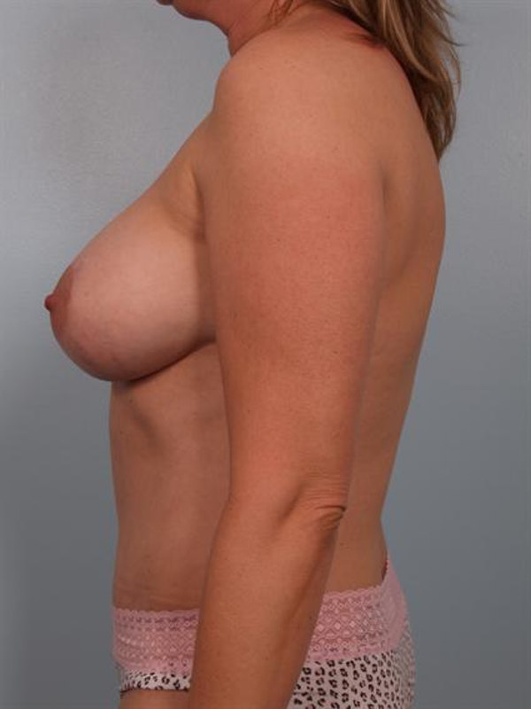 Mommy Makeover Gallery - Patient 1310921 - Image 4