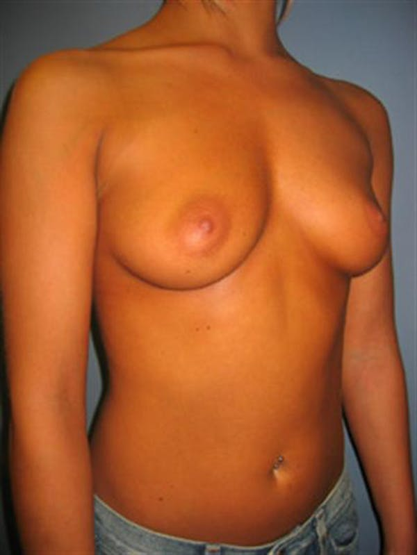 Breast Augmentation Gallery - Patient 1310922 - Image 5