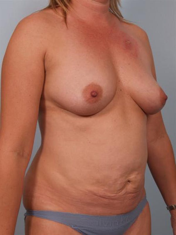 Mommy Makeover Gallery - Patient 1310921 - Image 5