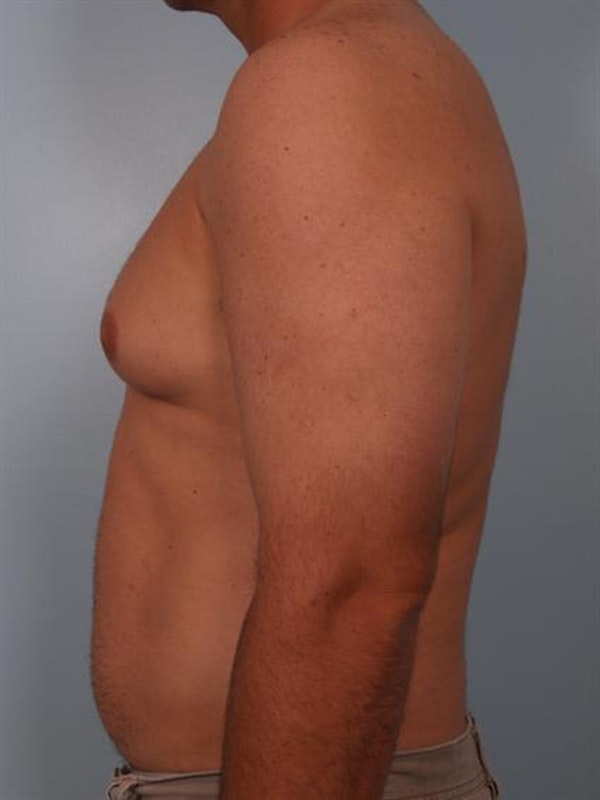 Male Breast/Areola Reduction Gallery - Patient 1310919 - Image 5