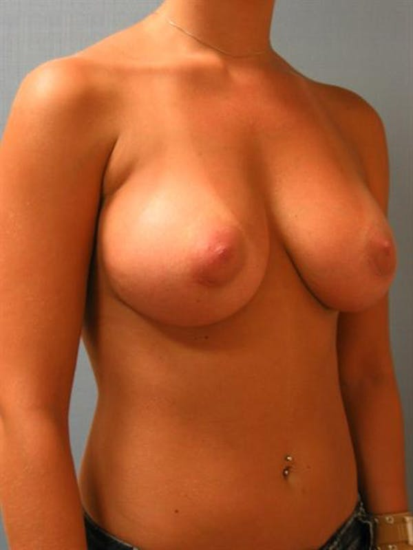 Breast Augmentation Gallery - Patient 1310922 - Image 6