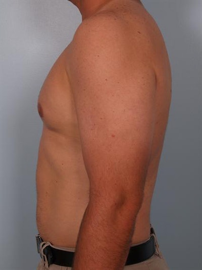 Male Breast/Areola Reduction Gallery - Patient 1310919 - Image 6