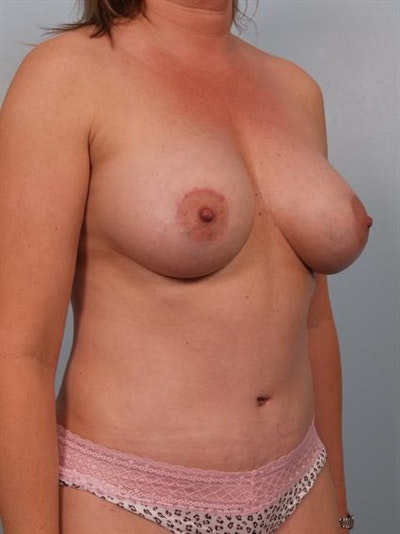 Mommy Makeover Gallery - Patient 1310921 - Image 6