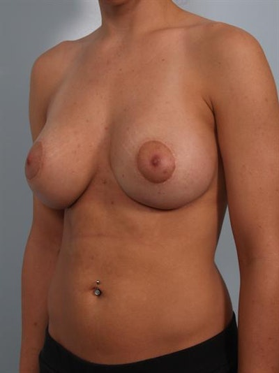 Breast Lift Gallery - Patient 1310924 - Image 6