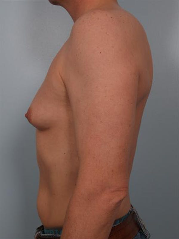 Male Breast/Areola Reduction Gallery - Patient 1310925 - Image 3