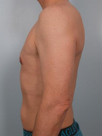 Male Breast/Areola Reduction Gallery - Patient 1310925 - Image 4