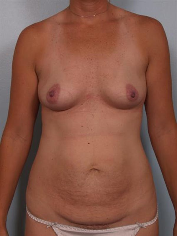 Mommy Makeover Gallery - Patient 1310928 - Image 1